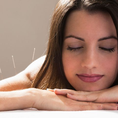 Woman having acupuncture