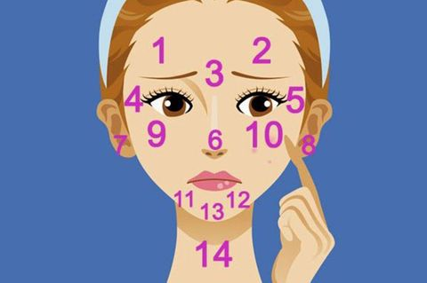 Acne face map: what do your spots say about you?