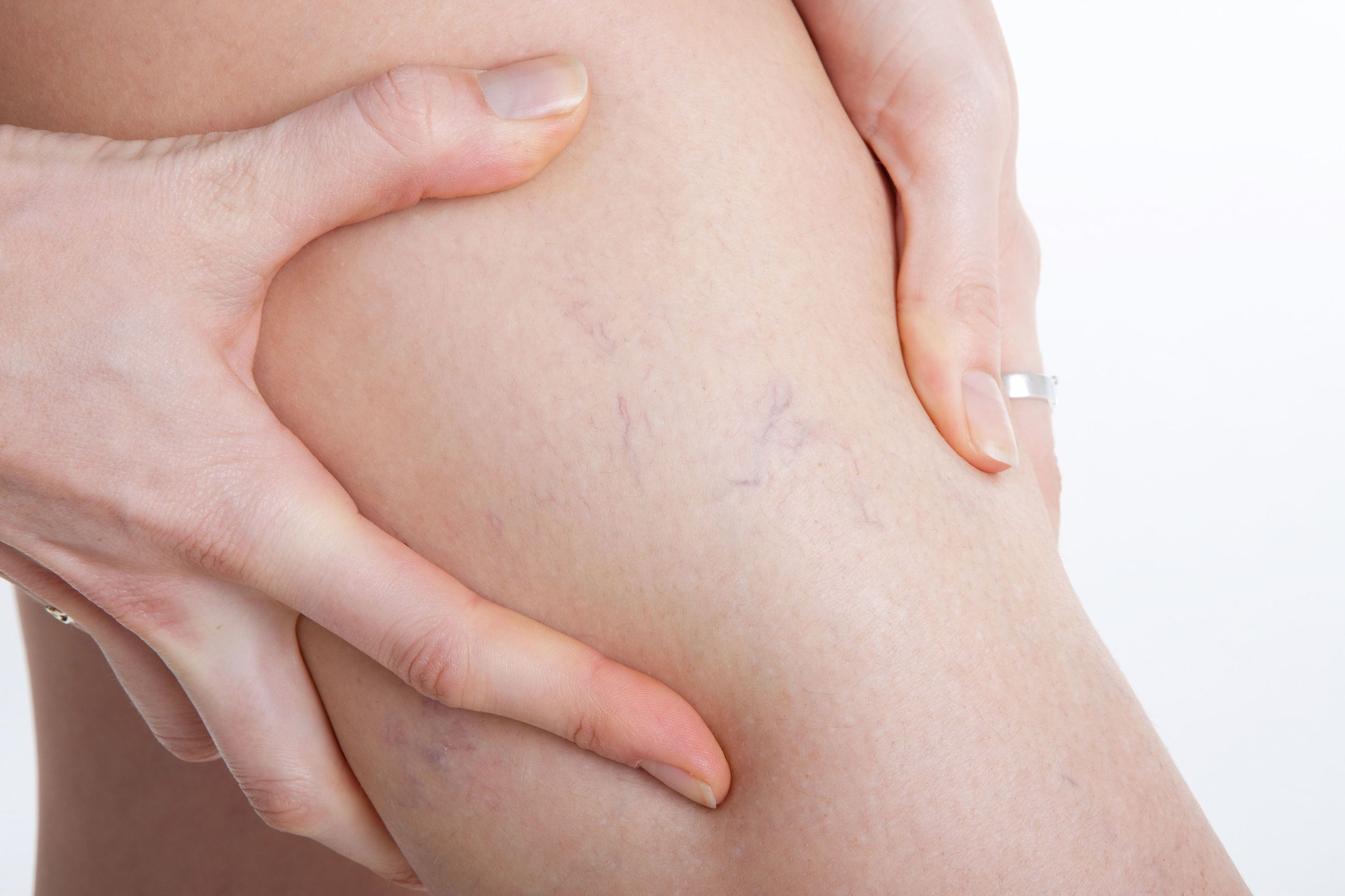 how to hide varicose veins on legs