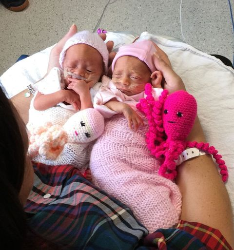 Image result for premature babies octopus