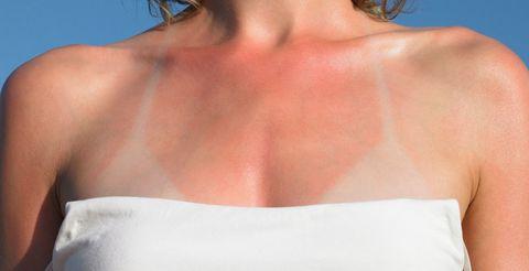 Woman with sunburn