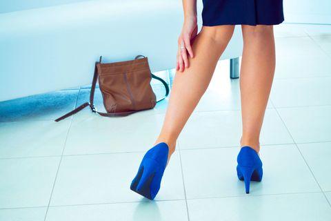 woman varicose veins leg