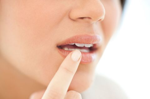 Flipboard: This is how to get rid of a cold sore fast
