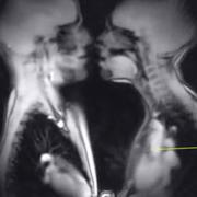Medical radiography, Photograph, Radiology, Radiography, X-ray, Monochrome photography, Monochrome, Medical imaging, Medical, Black-and-white,