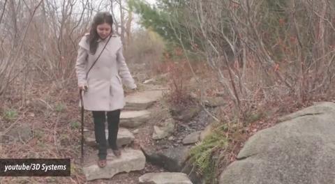 Woman With Prosthetic Leg