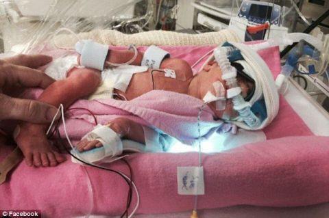 Premature newborn baby