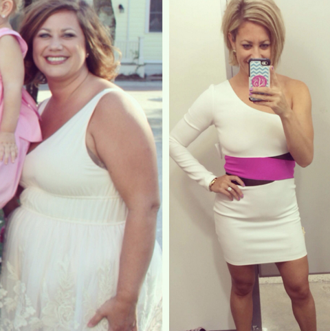 Weight loss before and after pictures legs picture 8