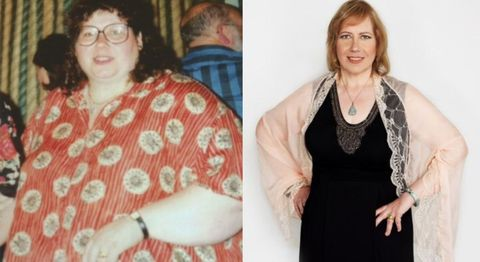 How This Woman Lost 240 Pounds Being Hypnotized