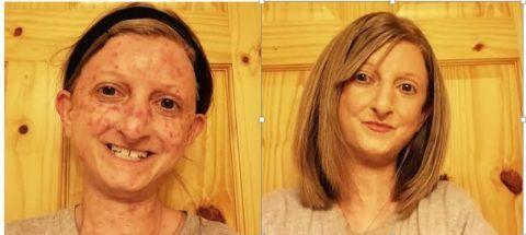 Nose, Lip, Cheek, Hairstyle, Skin, Chin, Forehead, Eyebrow, Facial expression, Iris,