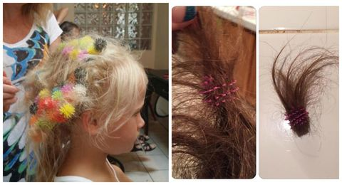 Bunchems toy stuck in hair