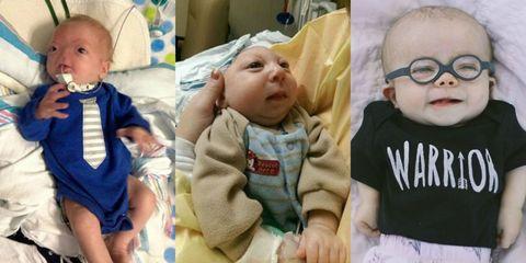 Head, Nose, Ear, Cheek, Skin, Eye, Sleeve, Child, Baby & toddler clothing, Toddler,