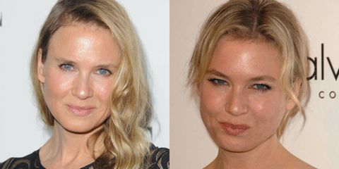 Renee Zellweger's changing face
