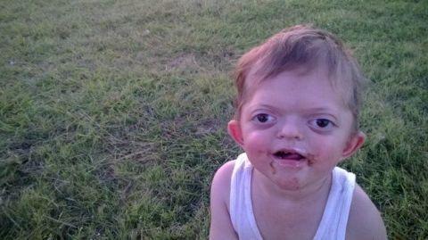 Ear, Lip, Cheek, Grass, Skin, Summer, Child, Tongue, Baby & toddler clothing, Plain,