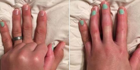 This Husband's Kind Gesture For His Wife Who Lost Her Pinky is Going Viral