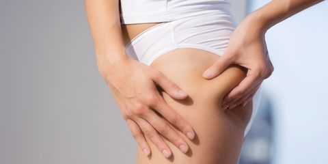 How to Get Rid Of Cellulite On Thighs, Legs and Butt - Cellulite ...