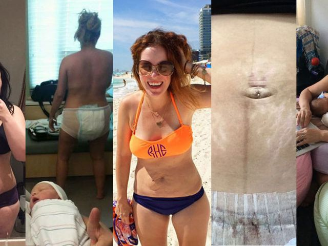 6944484040e55 I Went Viral for Baring My Post-Baby Body on the Internet. Here's What  Happened Next.
