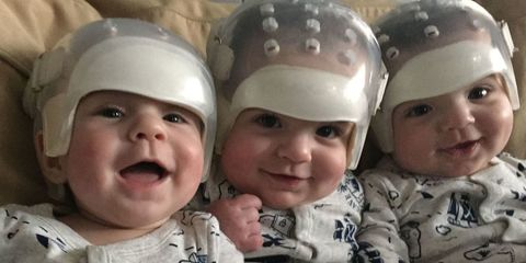 howard triplets born with craniosynostosis