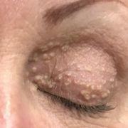 Face, Eyebrow, Skin, Nose, Forehead, Close-up, Eye, Eyelash, Wrinkle, Head,