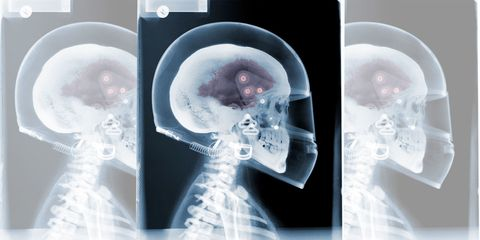 Jaw, Circle, Medical imaging, Transparent material, Bone, Science,