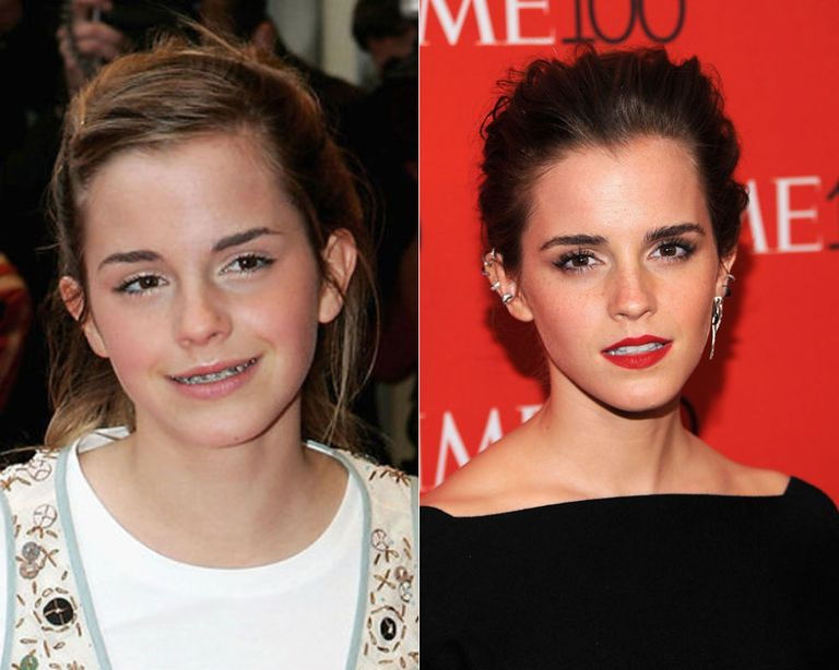 Which celebrity gets better looking with age?   Yahoo Answers