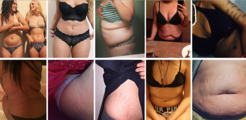 Skin, Joint, Thigh, Organ, Undergarment, Muscle, Trunk, Fashion, Pattern, Abdomen,