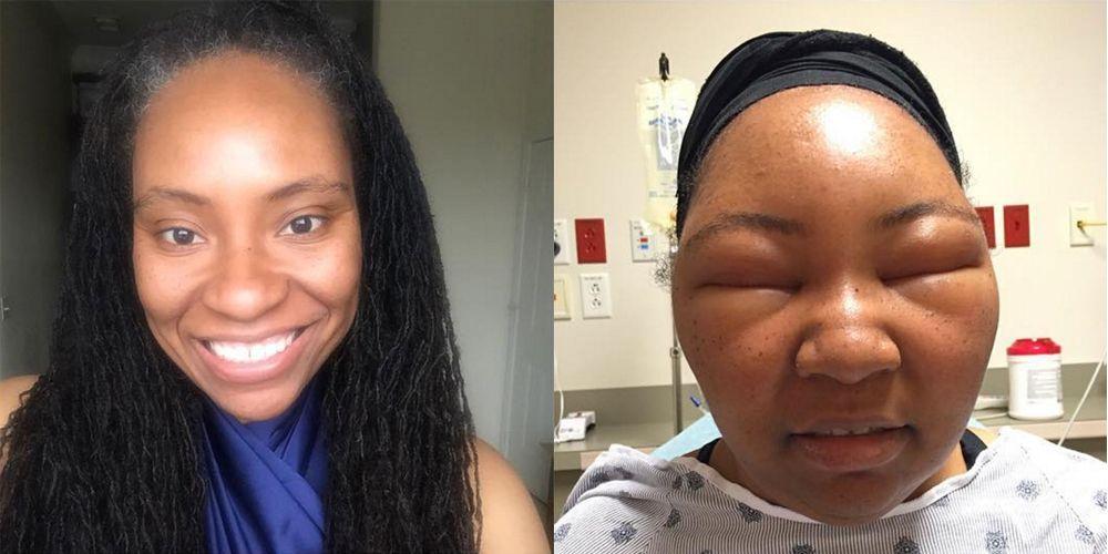 Health Vlogger Has Terrifying Reaction To Henna Hair Dye