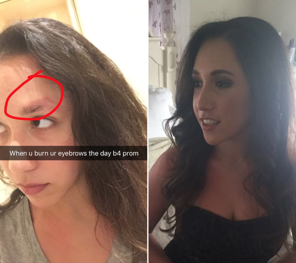 This Girl Burned Her Brows Off The Day Before Prom And Bounced Back