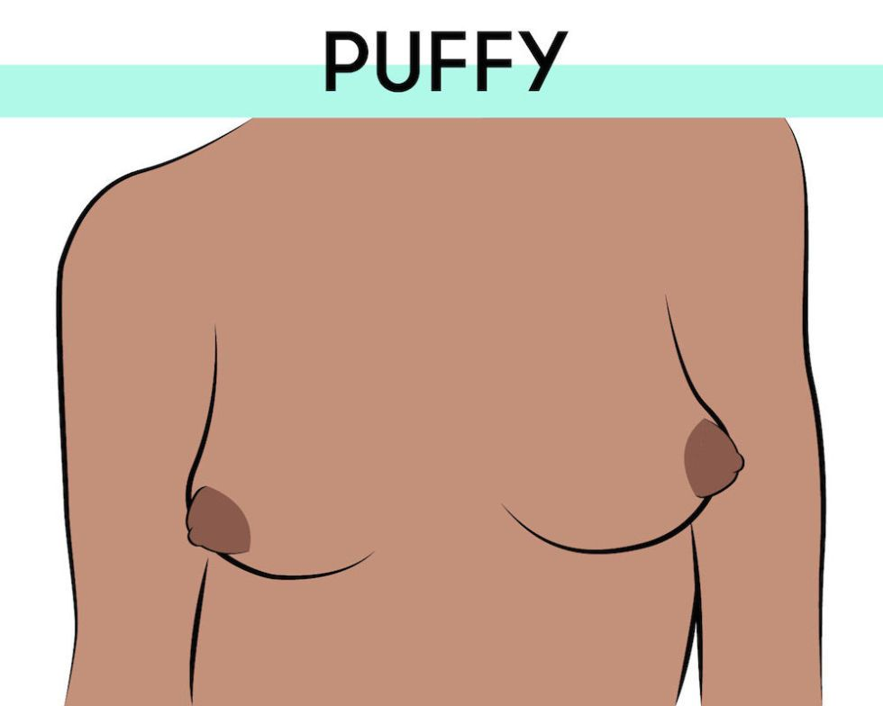Puffy Inverted Nipples Tumblr