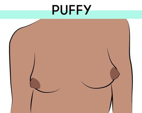 Image result for 1. Protruding nipple