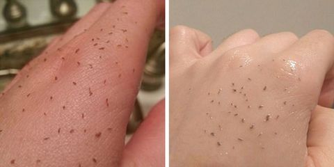 This new blackhead removal trend will seriously gross you out
