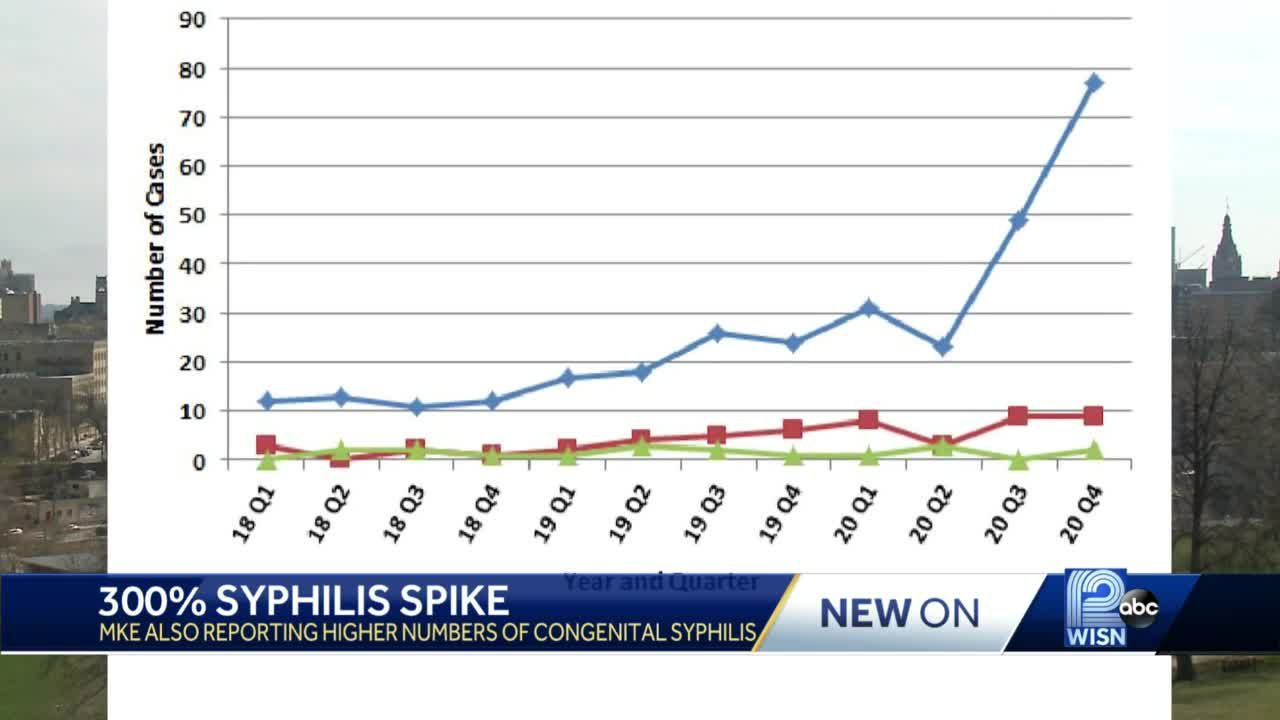 Cases of syphilis spiking in Wisconsin