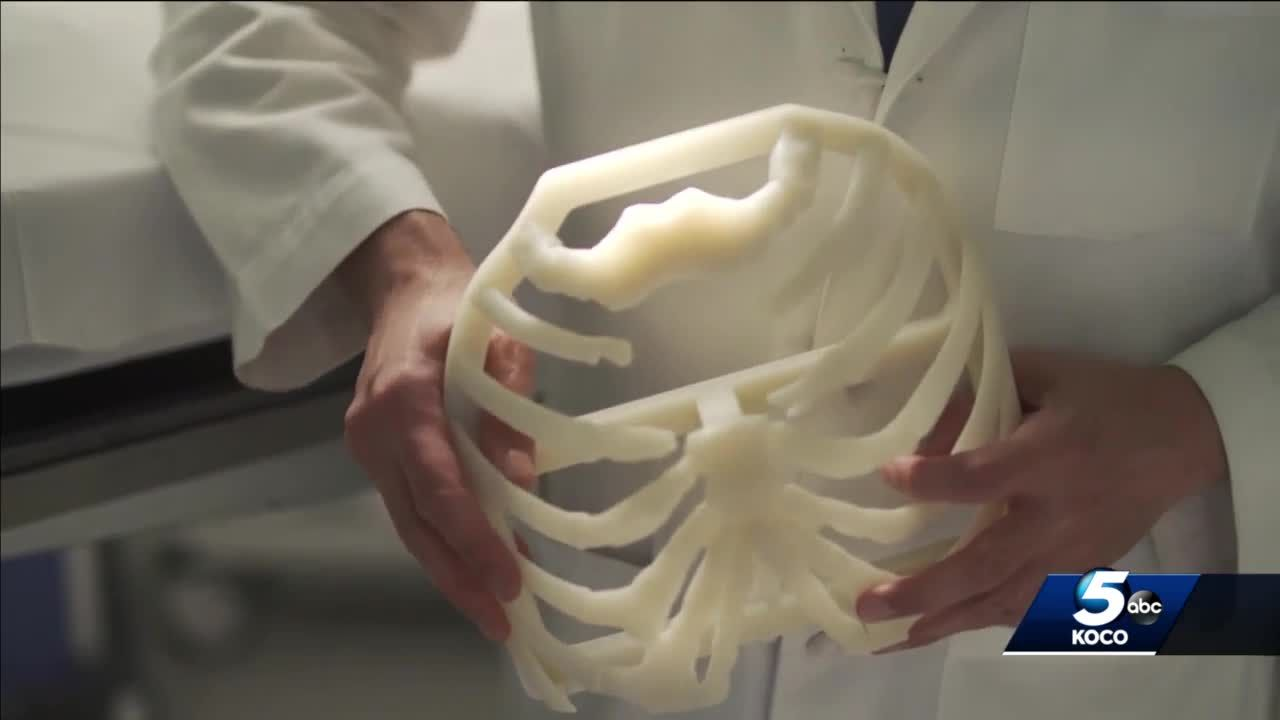 Unique surgery in Oklahoma uses 3-D printing to replace bones in patient's chest