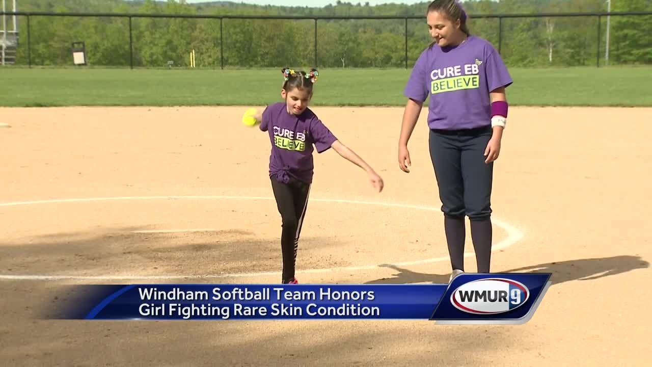 Young girl battling skin disease honored