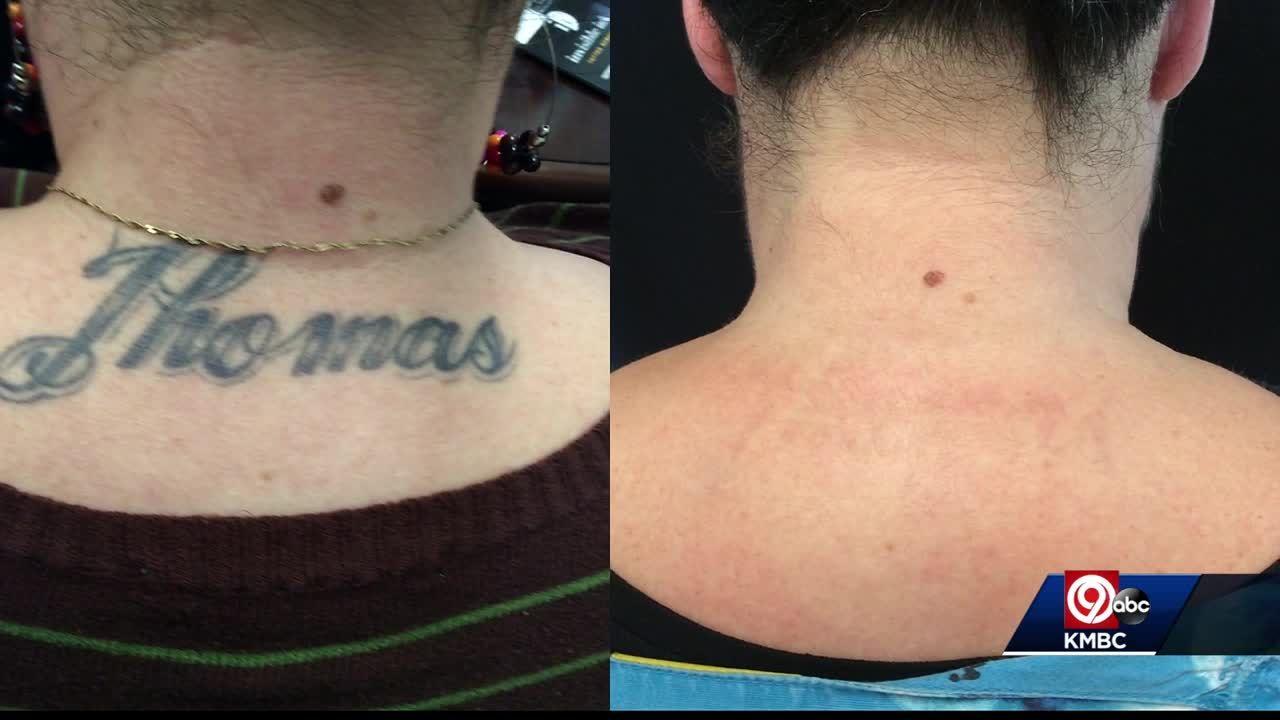 Kansas City has a lot of tattoo regret