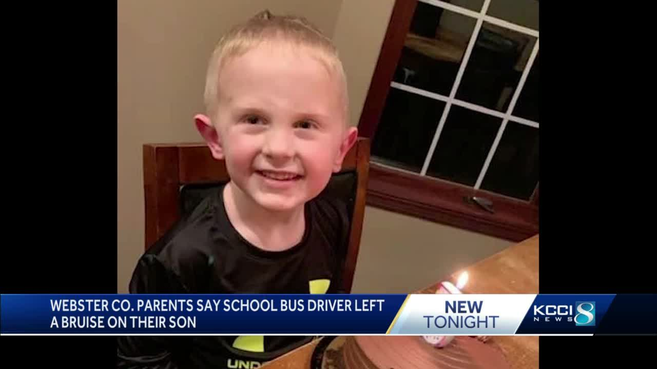 Humboldt Community Schools parents say their son was bruised by the bus driver