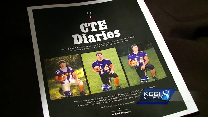 f5b123668 Mother whose son had CTE warns young athletes of disease