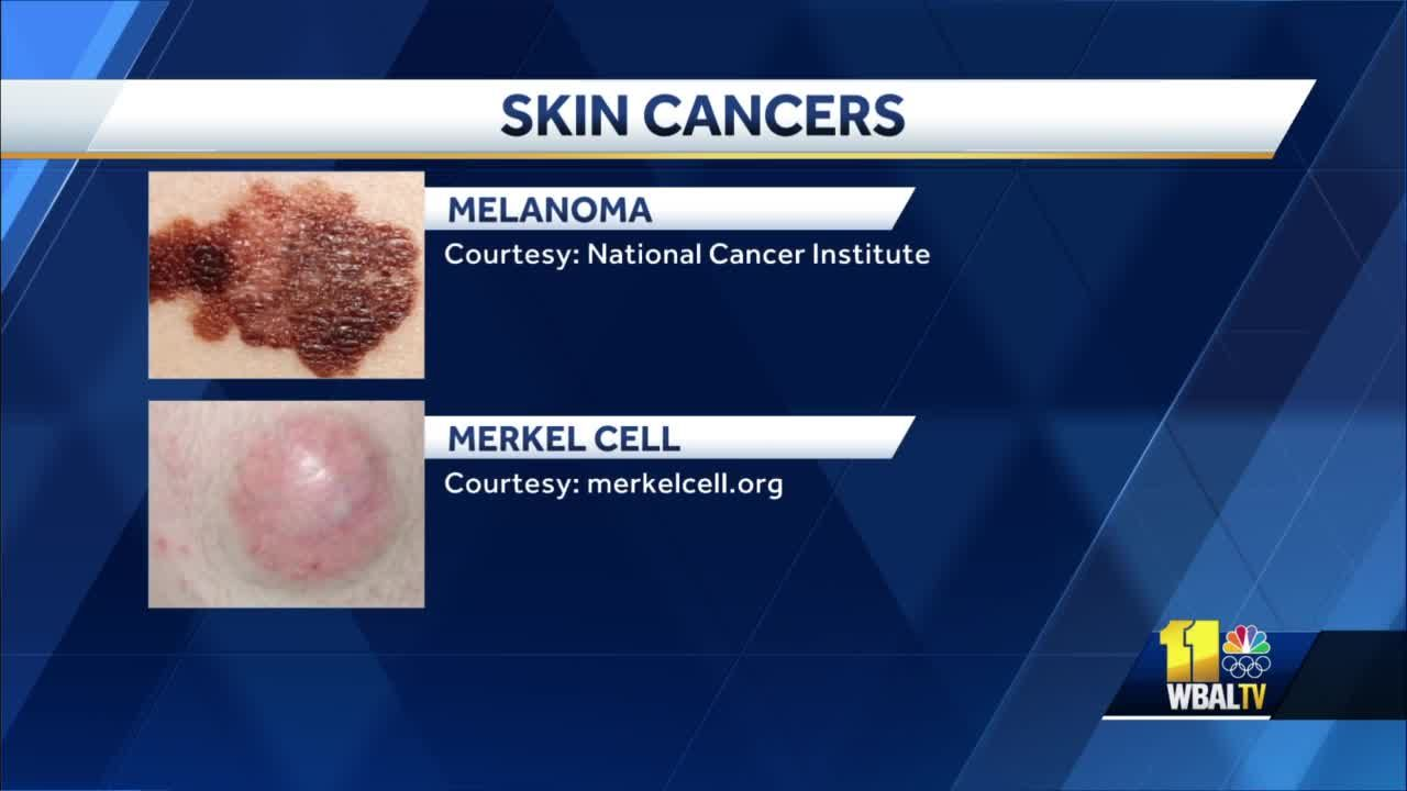 These are the four main types of skin cancer