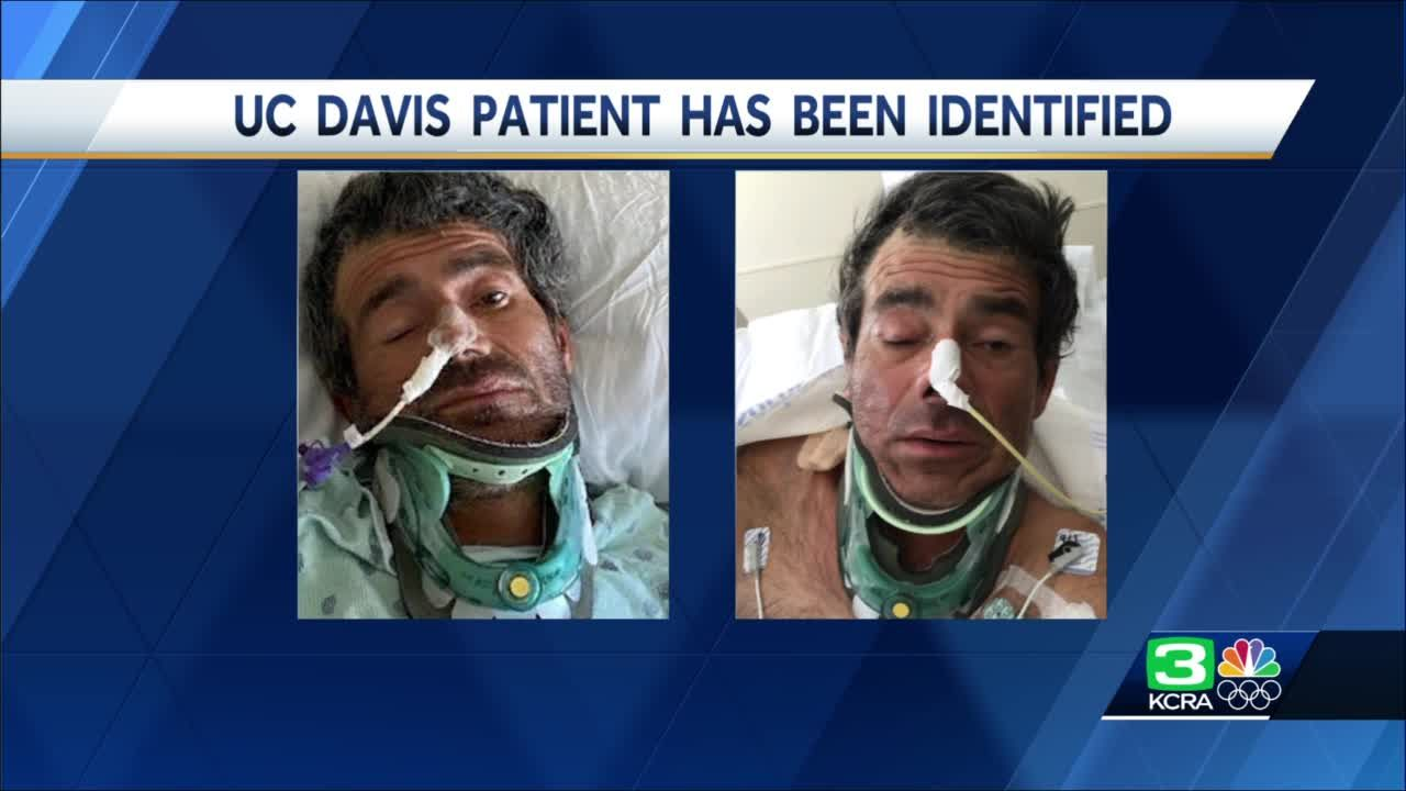 UC Davis patient has been identified