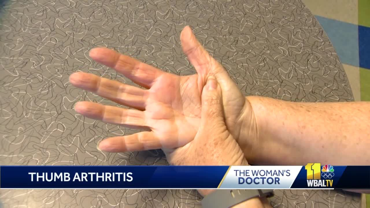The Woman's Doctor: Osteoarthritis affecting the thumb