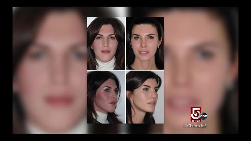 About Face: Facial Feminization