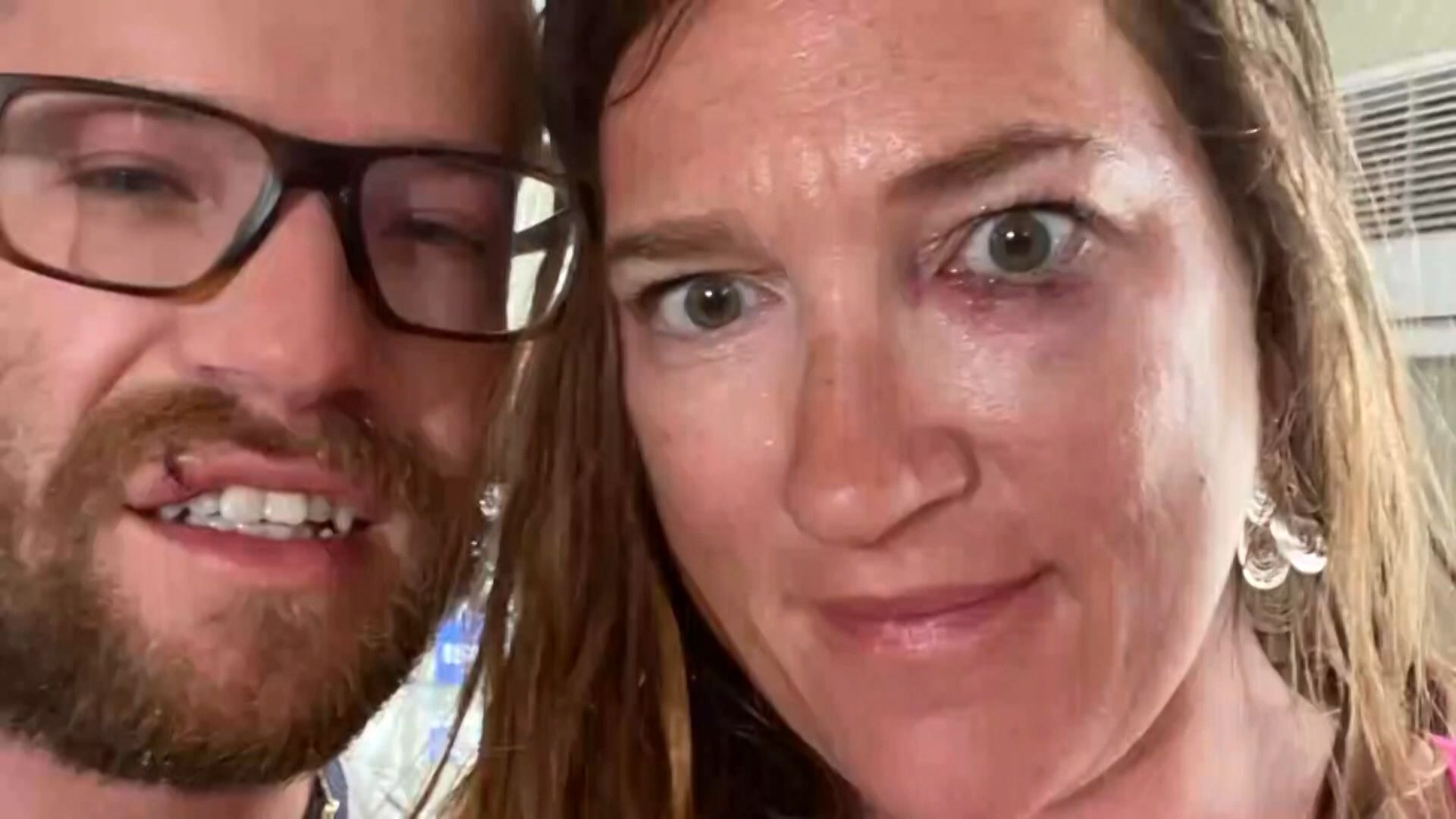 New Hampshire couple viciously beaten near bus stop while on Florida vacation