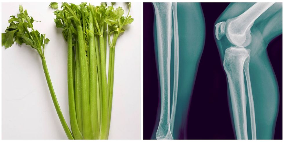 Foods That Look Like the Body Parts They're Good For Landscape-1468205055-picmonkey-collage-8