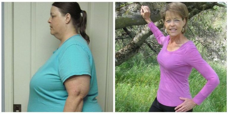 This Quot Weight Loss Queen Quot Lost 225 Pounds In Her 60s Tops