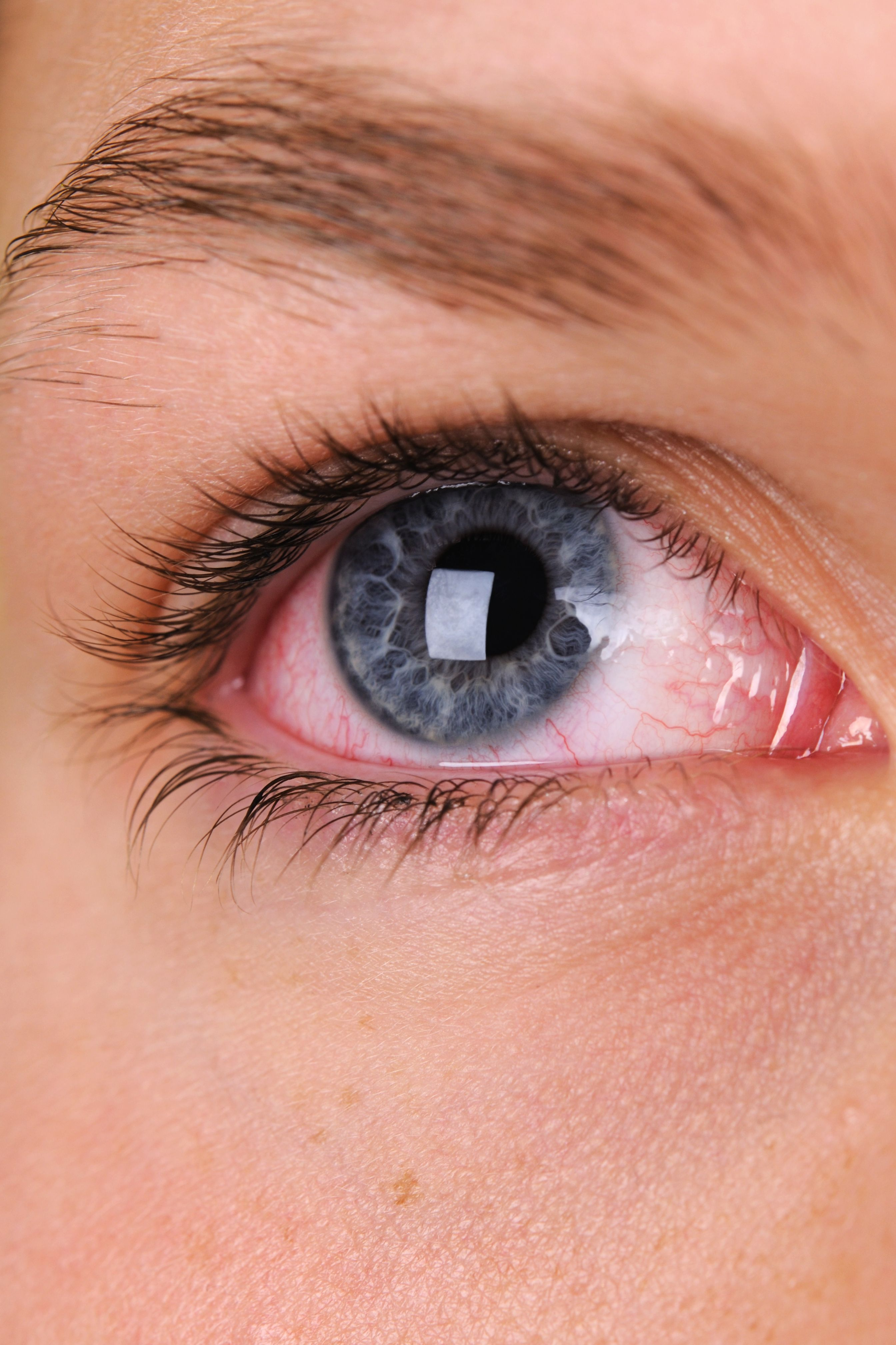 Eye Health: The Warning Signs To Watch Out For