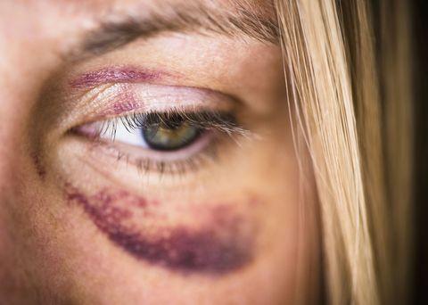 Brown, Skin, Eye, Eyelash, Eyebrow, Iris, Amber, Organ, Beauty, Photography,