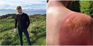This guy's sunburn is going viral