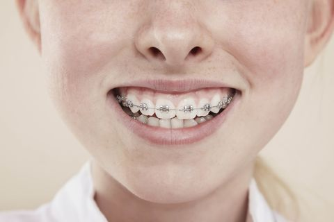 A woman learned she had braces in her stomach 10 years later woman braces stomach solutioingenieria Image collections