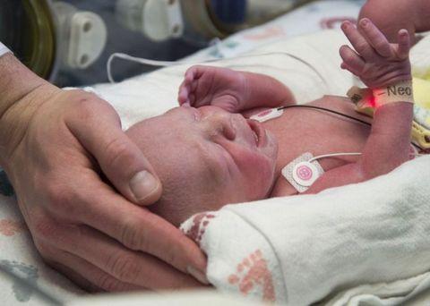 Baby, Child, Birth, Skin, Childbirth, Hand, Finger, Arm, Nail, Flesh,