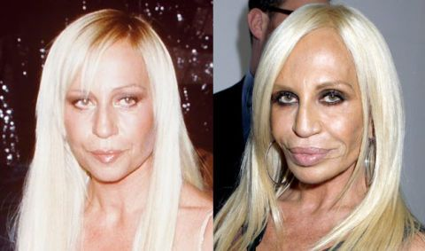 Plastic Surgery Gone Wrong - Bad Celebrity Plastic Surgery