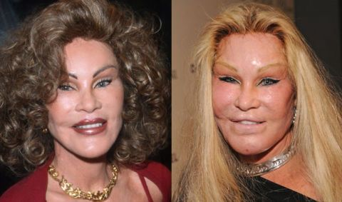Bad facial plastic surgeries